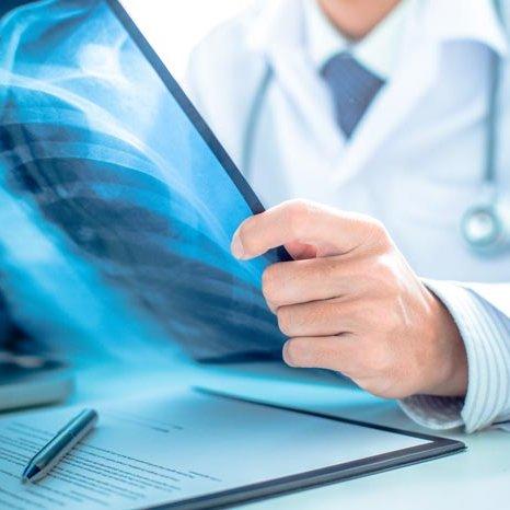 Лицензирование мед деятельности - рентген